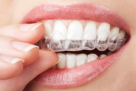 Bleaching Whitening Dental Service Haywards Heath