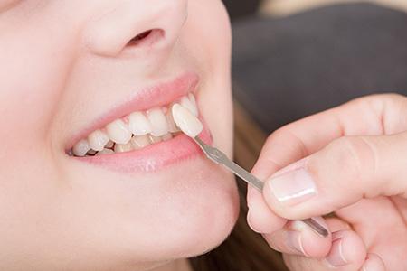 Cosmetic Dentistry Service Haywards Heath